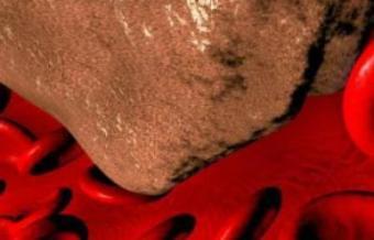 Влияние курения на сосуды и систему кровообращения