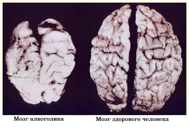 Диагностика алкогольной энцефалопатии