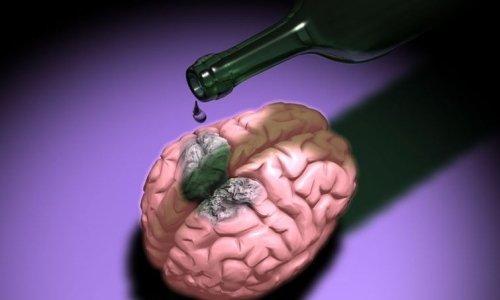 Последствия алкогольной энцефалопатии