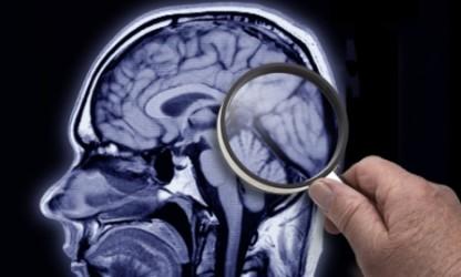 Причины возникновения алкогольной деменции
