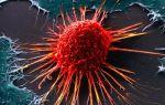 Неспецифические признаки развития опухолей