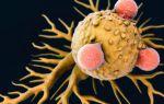 Полезные советы по предупреждению опухолей