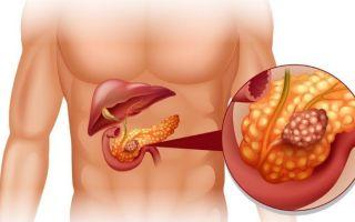 Как понять, что поджелудочная железа воспалена