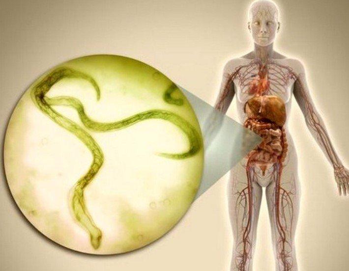 Все о паразитах в организме человека картинки