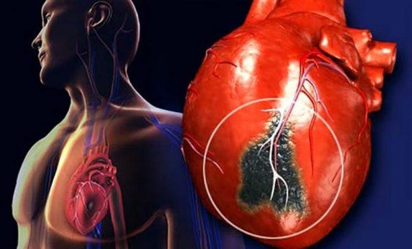 Как вовремя распознать инфаркт: 5 симптомов перед приступом