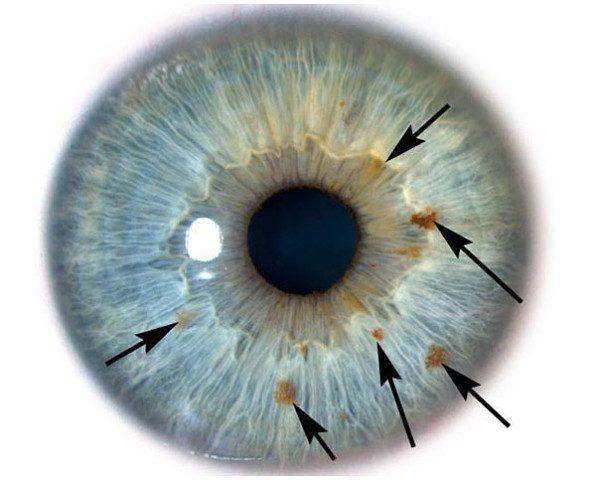 О каких 6 заболеваниях могут рассказать глаза