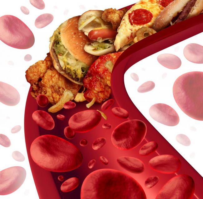 Очистка сосудов от холестерина