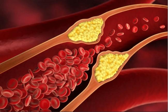 Продукты от холестерина: миф или реальность — разбираемся
