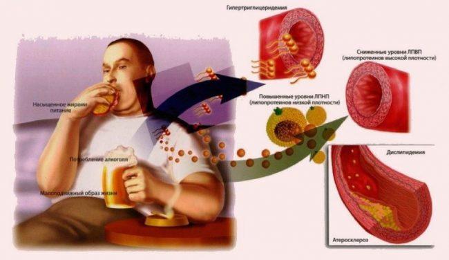 Плохой холестерин
