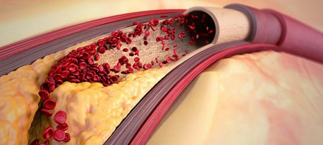 Холестерин - друг или враг: разбираемся