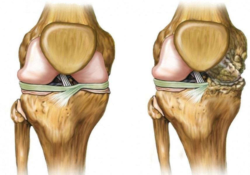 Деформирующий артроз суставов: причины и лечение